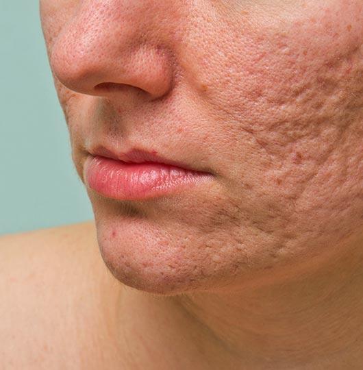 Multi Platform Skin Resurfacing Laser   Platinum Dermatology